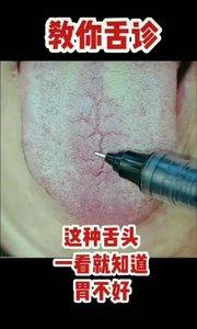 你有过这样的舌苔吗?#超红VLOG主角赛 #主播沙雕表情包 #主播哭了