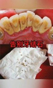 牙结石是怎么来的#超红VLOG主角赛 #主播沙雕表情包 #主播哭了