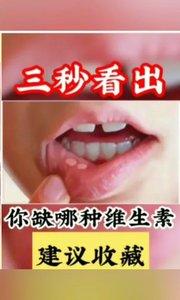 你体内缺少哪种维生素#七夕在线撒糖 #主播沙雕表情包 #主播哭了