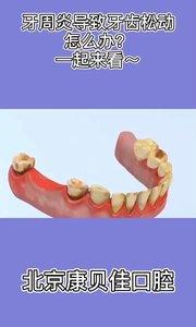 牙周炎,导致牙齿松动怎么办?