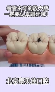 看看虫牙的放大版,一定要认真刷牙哦!#虫牙