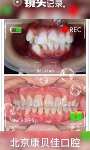 想矫牙?下不定绝心,快来看看他们的矫牙效果,再决定矫牙吧!#牙齿矫正